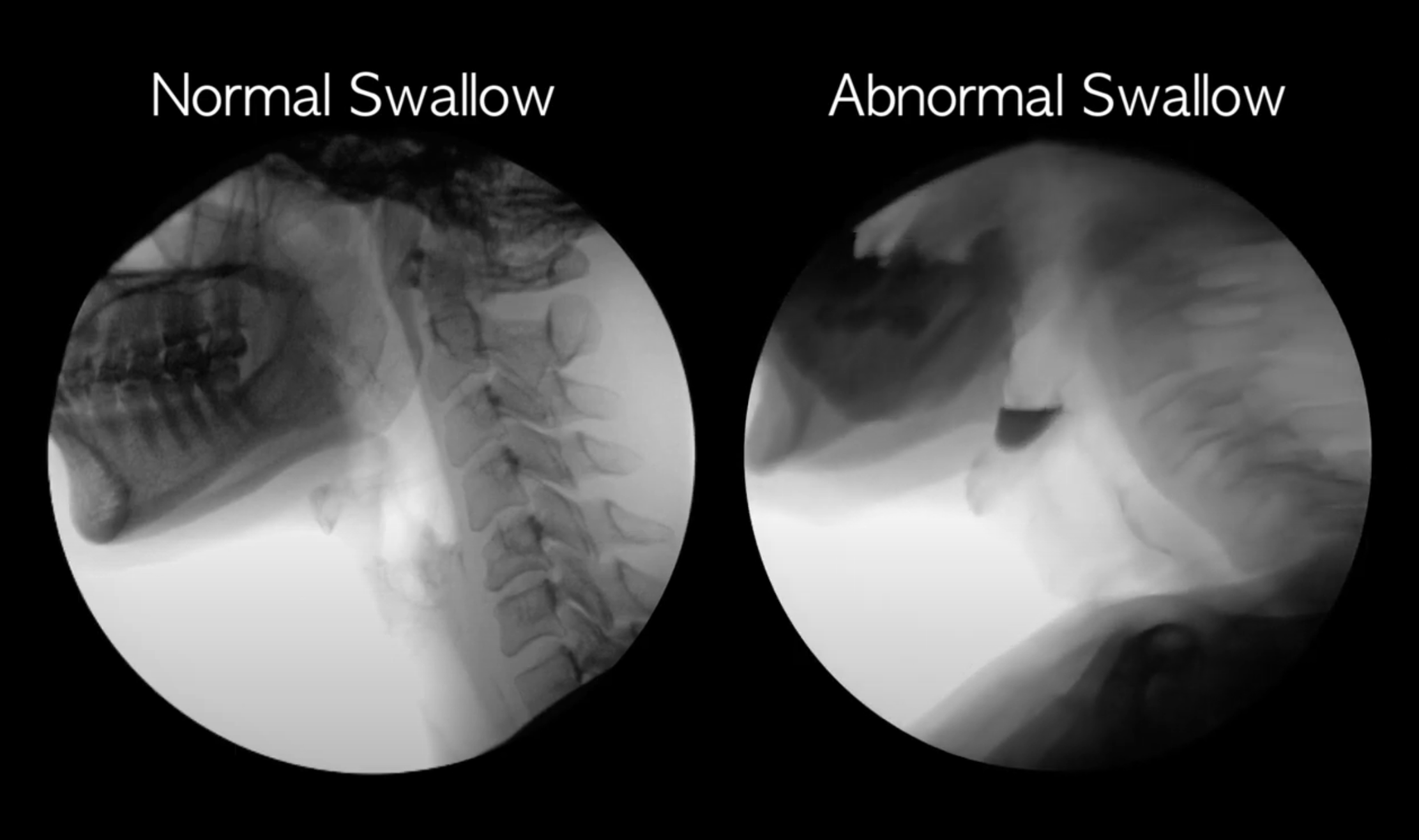 Abnormal Swallowing